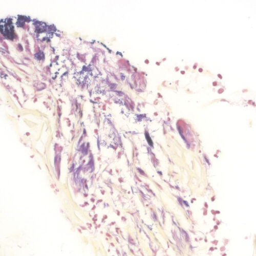 BioGram Histo kit - staining